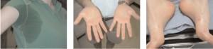 hyperhidrose aisselles,mains et pieds